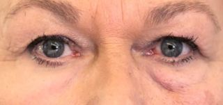 This image shows the effect of the second skin on a person's under-eye bags.