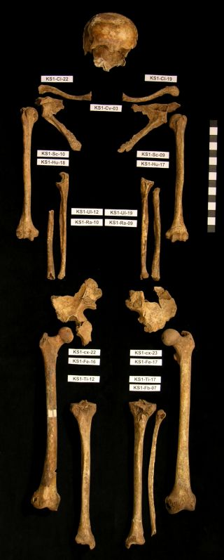 Skeletal remains from mass grave in Kassel, Germany.