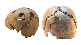 Blunt force cranial injuries that occurred at or near the time of death in two individuals from Potočani: (left) a boy age 11 to 17 years old, and (right) a young adult female.