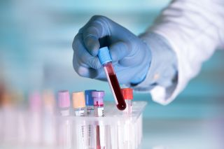 A lab technician holding a blood sample.