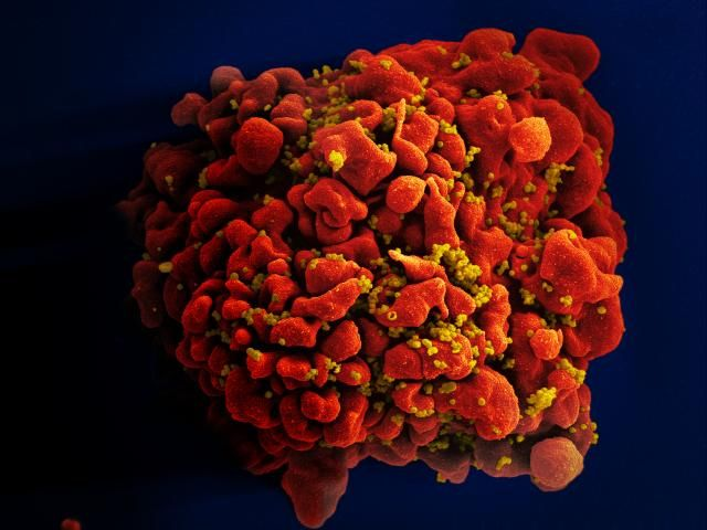 Oldest 'nearly complete' HIV genome found in forgotten tissue sample from 1966
