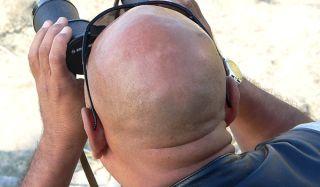 bald-head-110104-02
