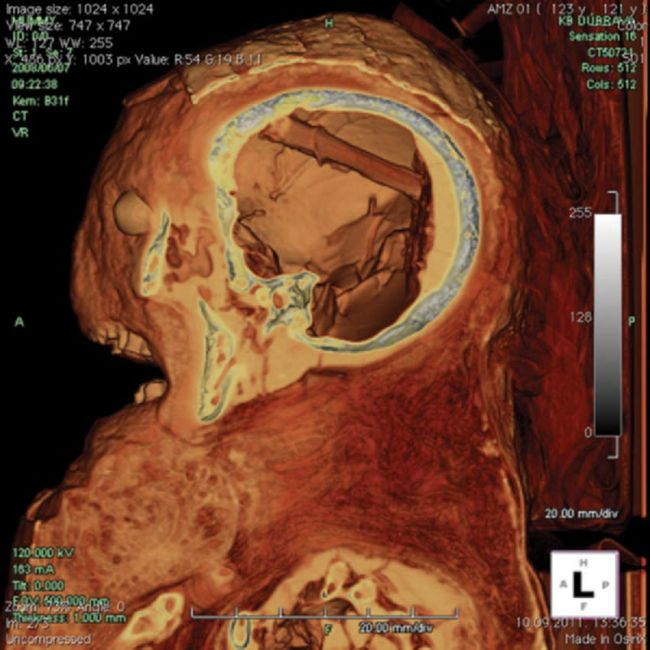 female egyptian mummy ct scan