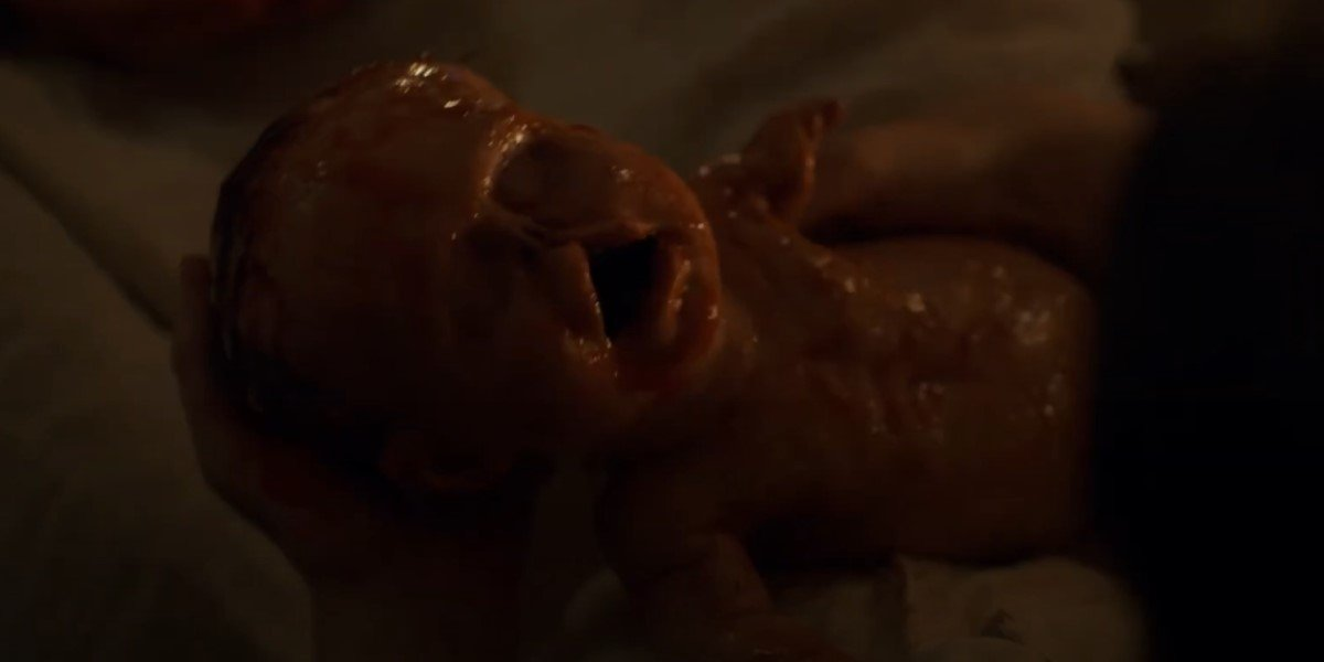 chapelwaite deformed baby