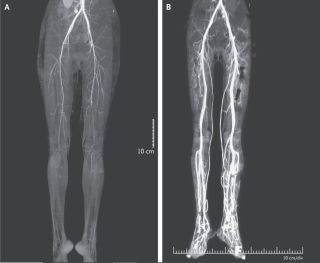 A burning pain in a woman's legs was due to ergotism, a disease that causes restriction of blood flow. The image shows a CT scan of the woman's legs before and after treatment for the disease.