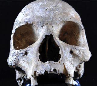 leprosy skull