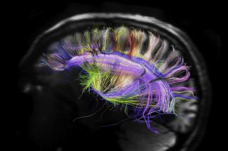 magnetic resonance imaging, xray