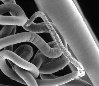 An image of an adult whipworm, taken with a scanning electron microscope. New research finds that these parasites have their own gut bacteria.