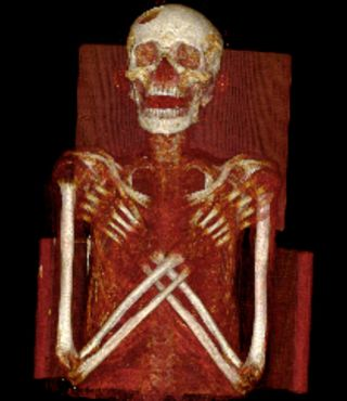 A 2,900-year-old mummy that shows signs of Hand-Schuller-Christian's disease, a very rare condition that left him with lesions in his skull and spine.
