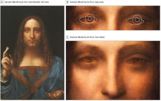 """Salvator Mundi,"" a painting recently attributed to Leonardo da Vinci may provide evidence that the artist had an eye condition called strabismus, according to a new paper."