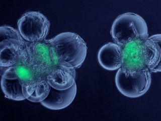 This micrograph shows cells called myoblasts attached to spherical microcarriers, which allow the growth of adult stem cells that have been isolated from skeletal muscle. The stem cells are shown in green.