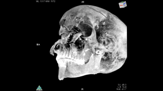 A CT scan of the skull of Seqenenre Taa II, whose facial wounds suggest a violent battlefiend death.