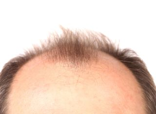 bald, male pattern baldness, bald man