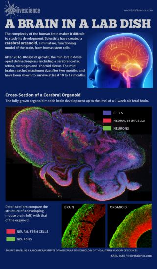 Infographic: a mini brain grown from human stem cells.