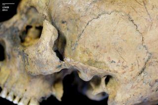 healed fractured cheekbone on fossil skull