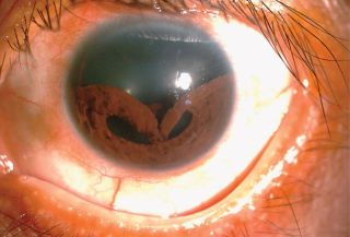 "A man in Taiwan was diagnosed with a painful eye injury called ""traumatic iridodialysis,"" in which the iris detaches from it's normal place. In this case, the iris detached at the top, and appears to be sagging downward."