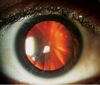 A woman's eye exam revealed 16 cuts on her eyeball arranged in a radial pattern, due to a now-outdated eye surgery. (The fiery-red appearance of the woman's pupil is simply due to the red-eye effect in the photograph.)