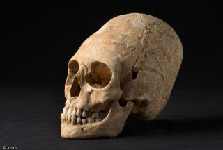 deformed skull from the dark ages in france