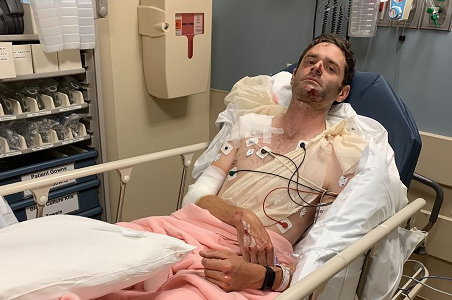 Phil Gaimon left with multiple fractures and partially collapsed lung after velodrome crash