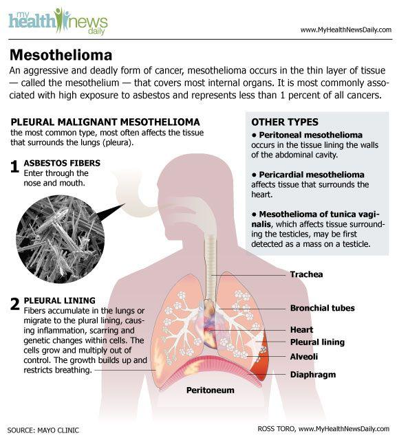 Malignant Mesothelioma: Symptoms and Treatments | Live Science
