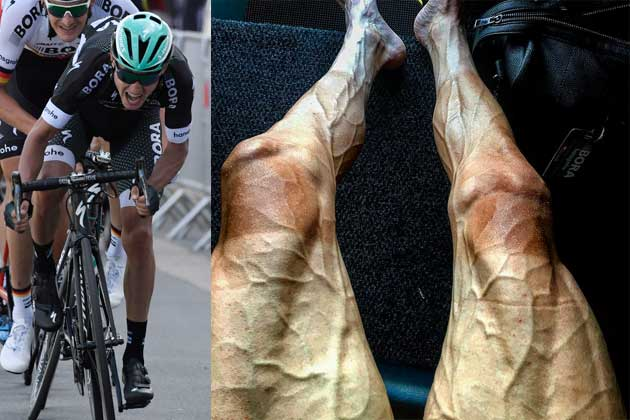 Professional Cyclist Legs After Tour De France