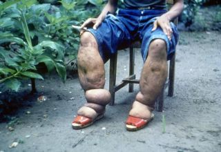 Elephantiasis What Causes This Strange Condition Live