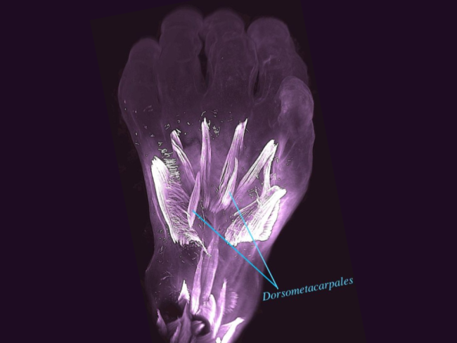 The hand of a 10-week-old human embryo with atavistic (relating to an ancestor) muscles called dorsometacarpales labeled.