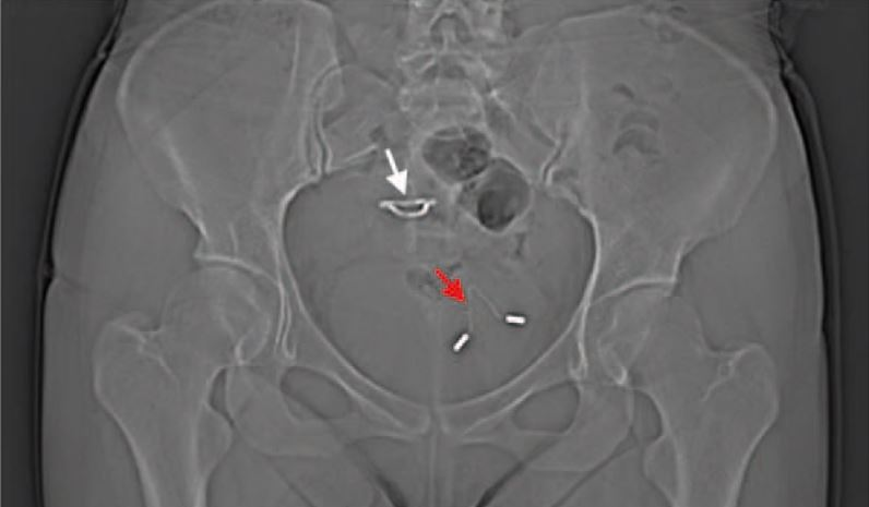 Woman S Missing Iud Turns Up In Her Bladder Live Science