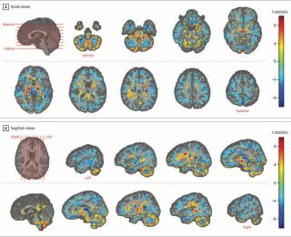 U.S. embassy workers who experienced unusual sensations while serving in Cuba show differences in their brain tissue, compared with healthy people, a new study finds. In the above brain images, the red and yellow colors indicate areas with higher brain vo