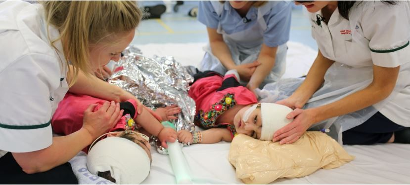Conjoined Twins Fused at the Head Now Separated After More Than 50 Hours of Surgery