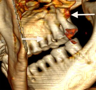 CT Scan of Otzi the Iceman's teeth