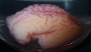 Scientists created a physical model of a human brain and stuck it into a vat of solvent, watching it develop and morph a wrinkly organ.