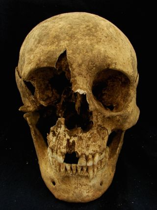 The skull of a middle-age man who was probably a migrant to Rome during the Imperial era.