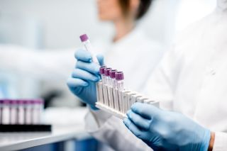 A person holding lab test samples.