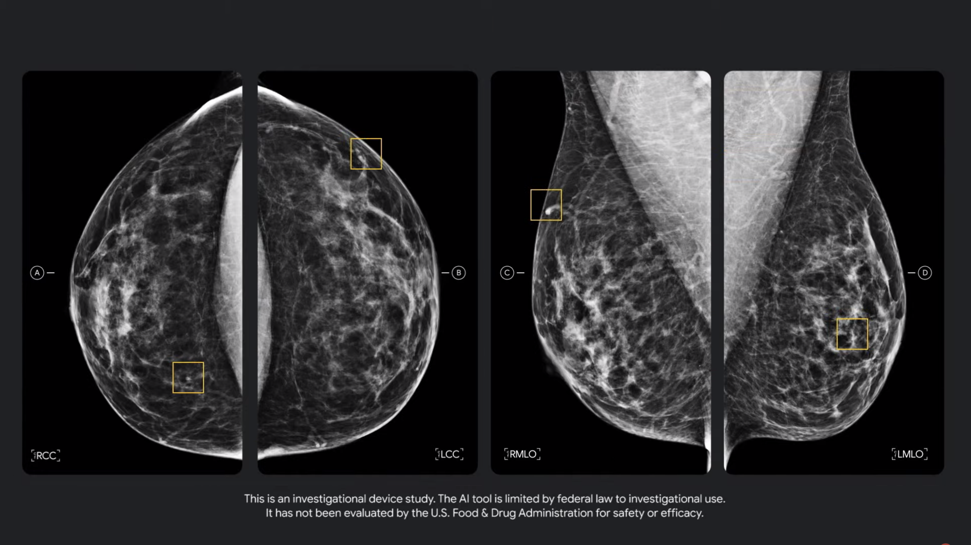 Google IO 2021 mammography