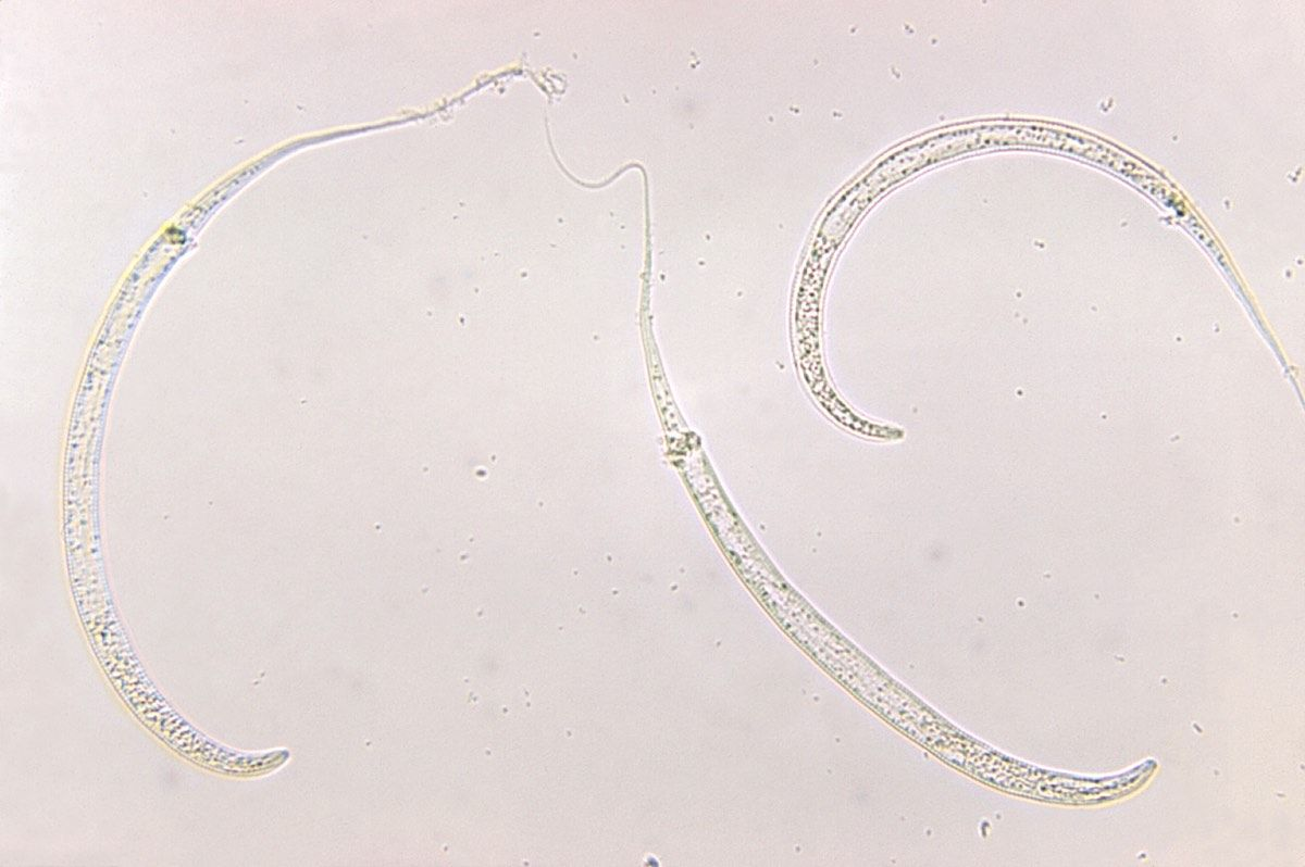 Images: Human Parasites Under the Microscope | Live Science