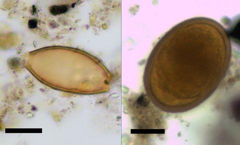 Enterobius vermicularis kezelés uptodate