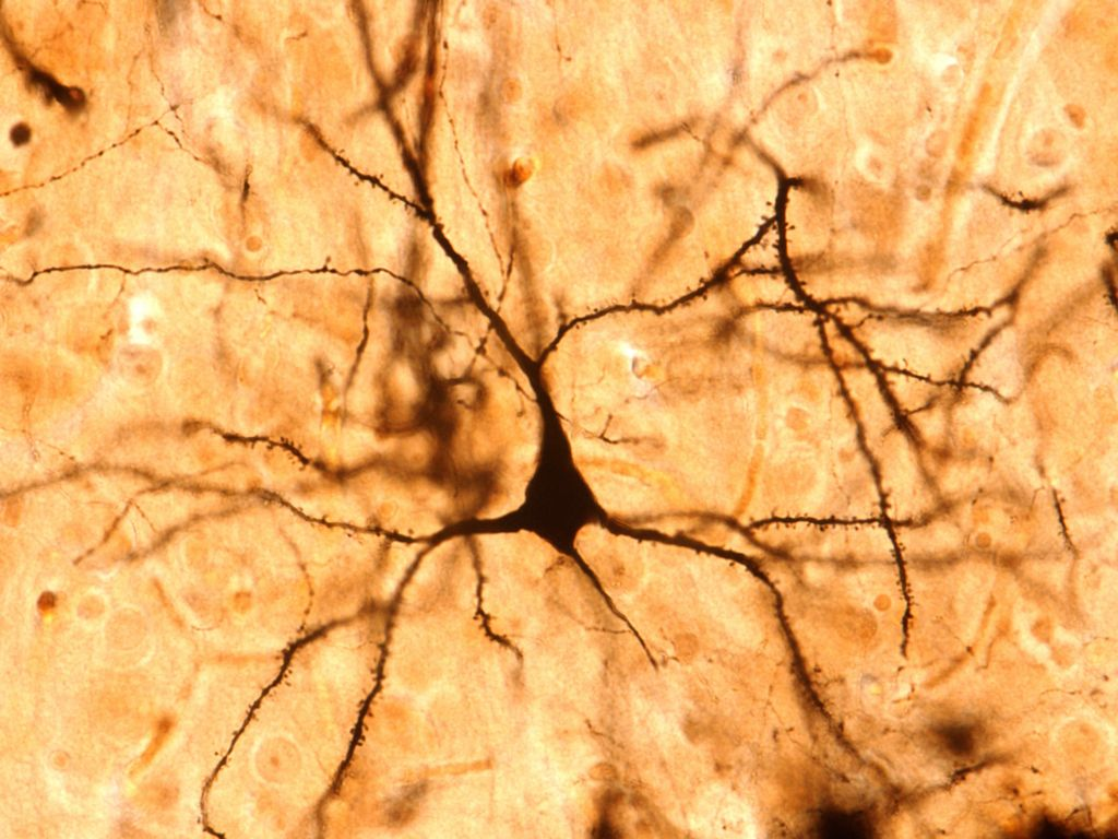 Unique Brain Signal Just Discovered. And It Might Just Make Us 'Human'