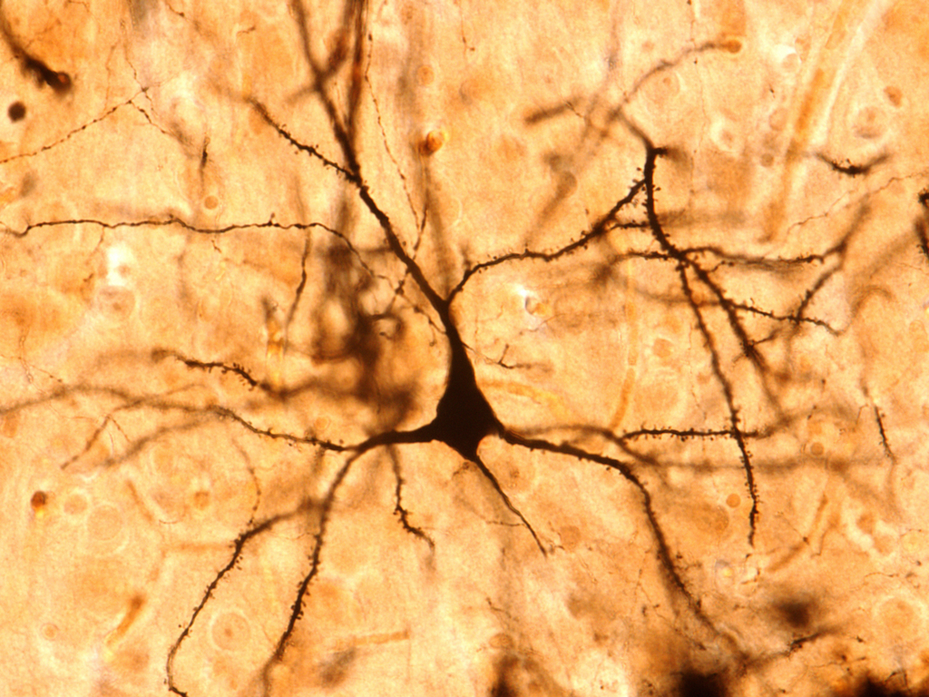 Overlooked Brain Cells May Have Leading >> Unique Brain Signal Just Discovered And It Might Make Us