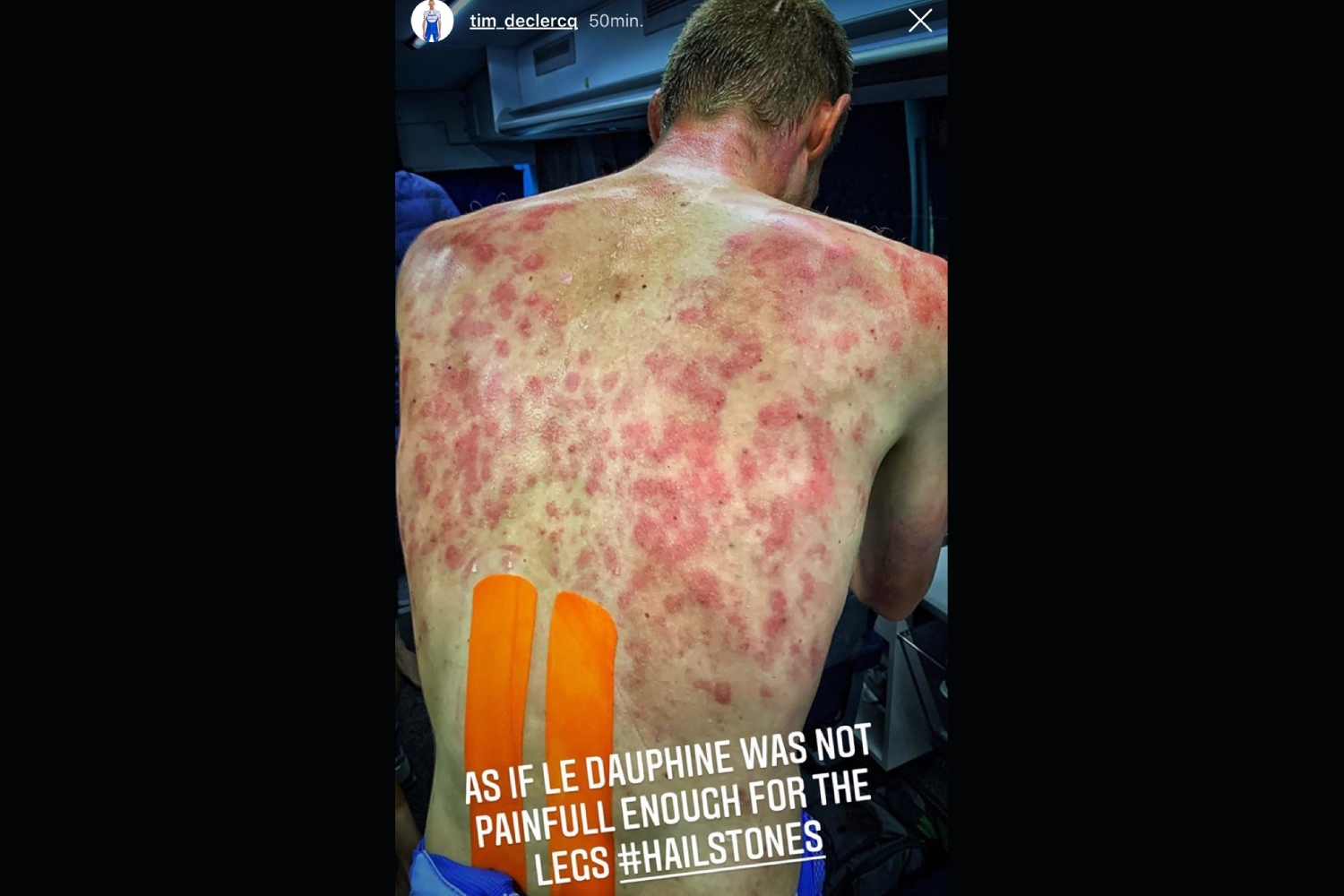 Tim Declercq's back after being hit by the Dauphine hailstones