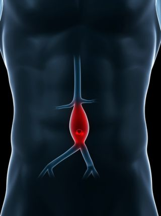 A diagram of an aneurysm within a man's body