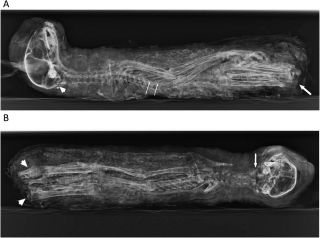 A side and front-on X-ray of the cat mummy.
