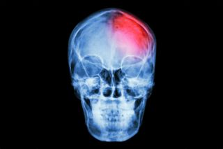 Brain injury image