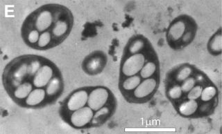 Transmission electron micrograph shows a strain of the bacterium called GFAJ-1, which researchers claimed can incorporate arsenic into its DNA and other vital molecules, in place of the usual phosphorus.