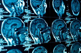 Stock photo du cerveau CT scan.