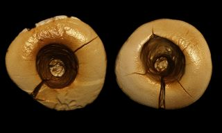 Archaeologists discovered a 13,000-year-old skeleton with two front teeth that have big holes in the surface that reach down to the tooth's pulp chamber.