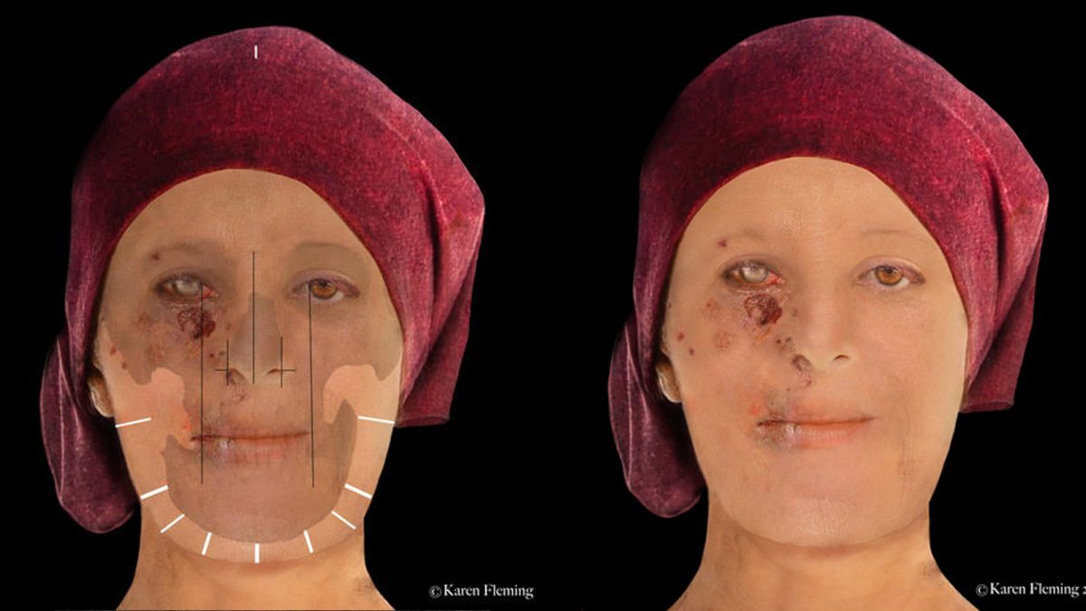 Amazing Digital Reconstructions Show a 16th-Century Scottish Woman Scarred by Leprosy