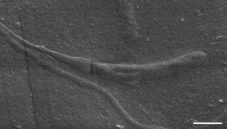 Leech sperm