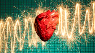 A graphic of a heart in front of an EKG