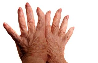 Rheumatoid Arthritis Symptoms Treatment Live Science